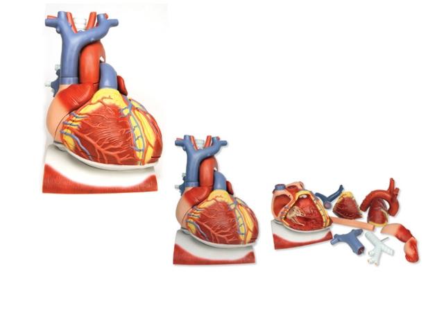 Herz auf Zwerchfell,3-fache Größe,10-teilig