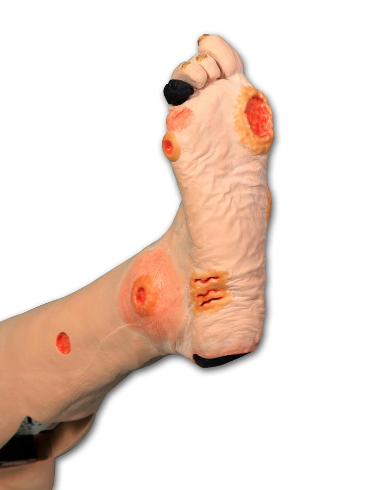Bein mit arterieller Insuffizienz