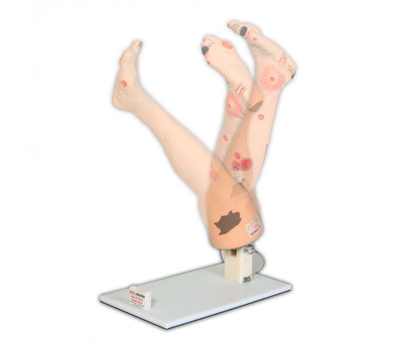 Stativ für Bein mit arterieller oder venöser Insuffizienz