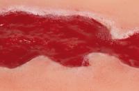 Wundmoulage Ulcus Cruris Venosum, klein, Granulationsphase